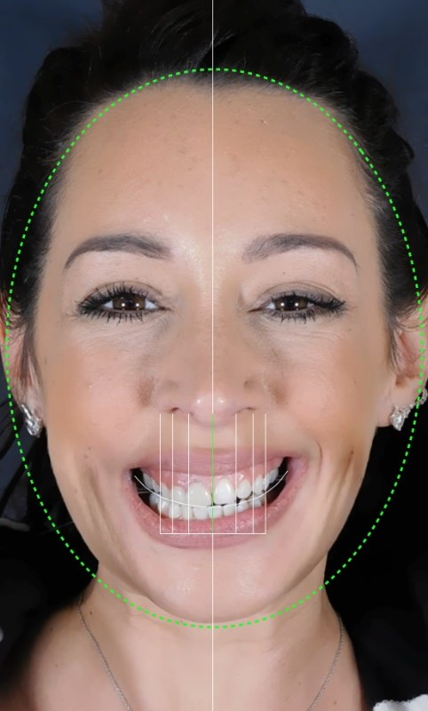 Digital-Smile-Design-Before2.jpg