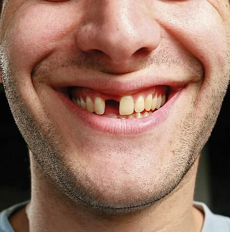 missing-tooth-pic-getty-980394876.jpg