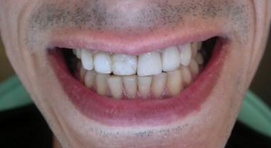 Dental Implants Case Study 2 | Glasgow Smile Clinic