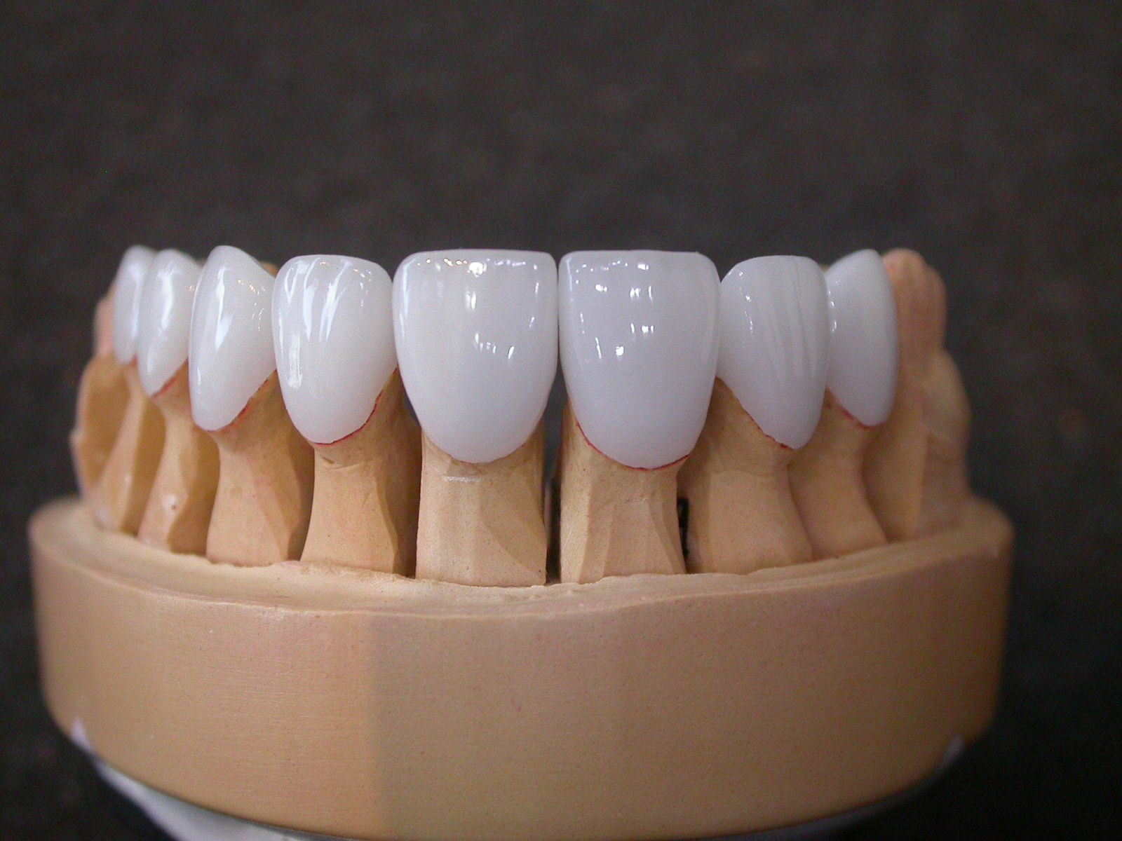 case b veneers on model.JPG