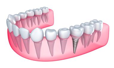 Dental Implants in Glasgow | Glasgow Smile Clinic